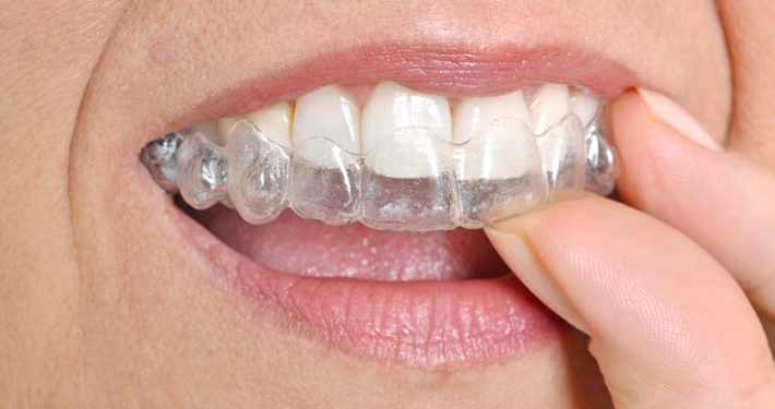 Usynlig tannregulering Elena Logan tannlege Røa