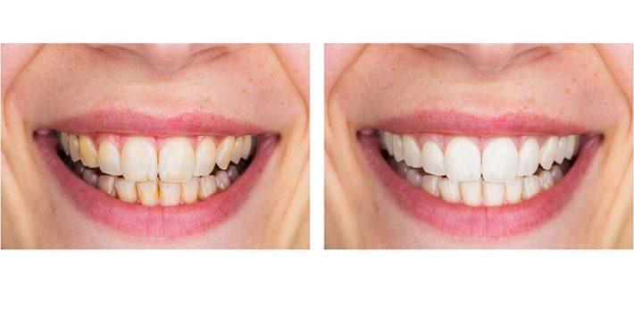 Bilde Estetisk tannbehandling Tannklinikk i Oslo