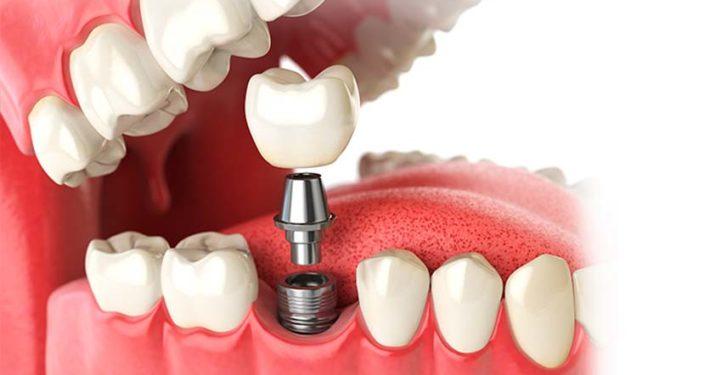 Bilde Implantatbehandling Smilia Tannklinikk
