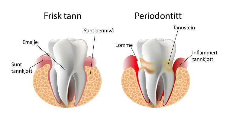 Bilde Periodontitt behandling Smilia Tannklinikk