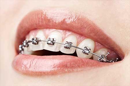 Fjerning av tannregulering Smilia Tannklinikk