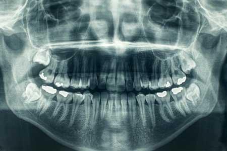 Bilde unngå røntgenbilder