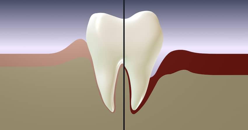 Bilde tannkjøttsykdommer gingivitt